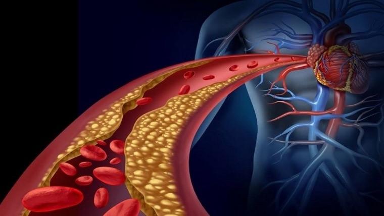 Médico Argentino, un hallazgo para prevenir infarto y ACV