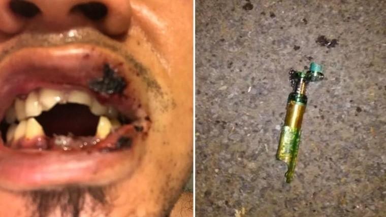 Le estalló un cigarrillo electrónico mientras fumaba y así le quedó la boca
