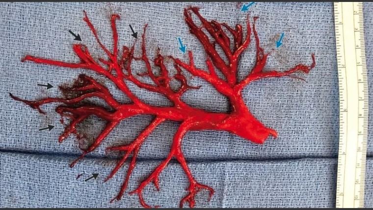 Tosió un increíble coágulo de sangre que le costó la vida