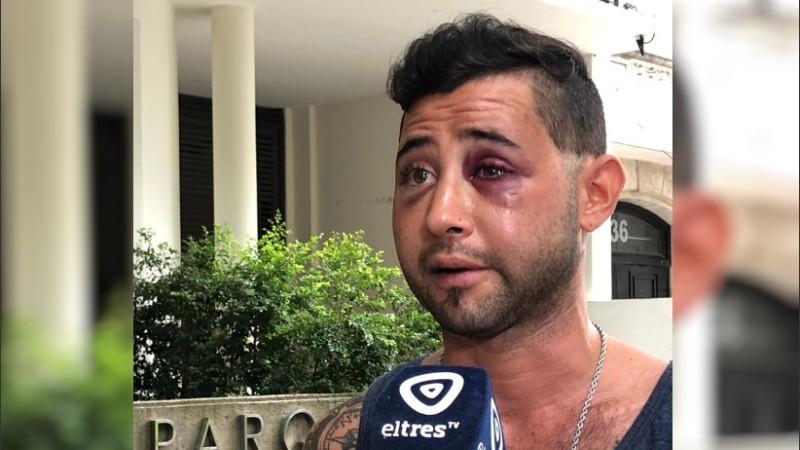 Matías fue víctima de dos robos y de una golpiza en la madrugada de este domingo.